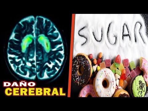 🥤🍨🍪¿cÒmo-afecta-el-azúcar-tu-salud-?-@metabolismotv