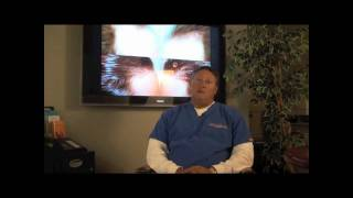 Misconceptions About FUE Hair Transplant - Video Part 1