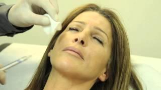 Les Injections de Radiesse pour supprimer les rides