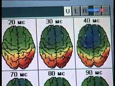 Мозг и Память. Новые научные открытия о памяти человека. Различные виды памяти.