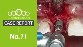 [ENG] Tissue volume change in anterior maxillary tooth with or without bone graft [#Dentalbean]
