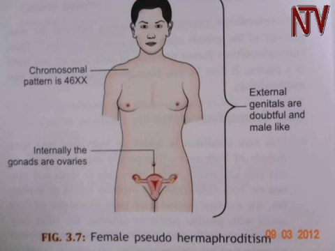 Health Focus: Dealing with ambiguous genitalia in intersex