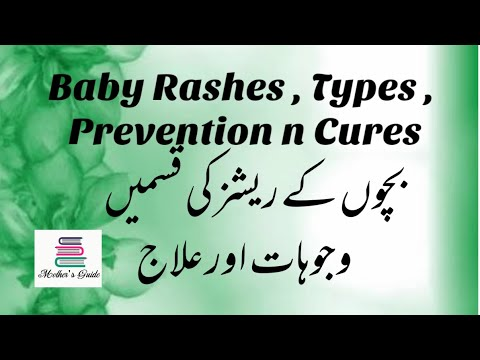 Baby Rashes, Prevention ,Causes N Cure  Nappy Rash  How To Cure Diaper Rash?