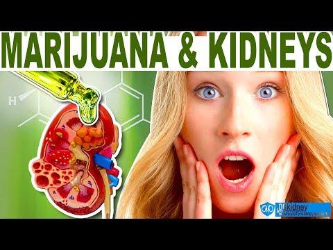 How to Treat Kidney Disease with Medical Marijuana and CBD Mp3