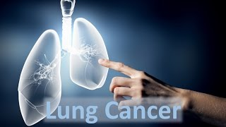 Lung Cancer- Causes and Solutions