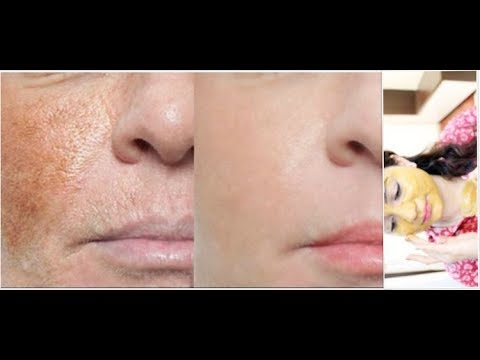 How To Remove Dark Spots And Pigmentation In 5 Days No 1 Home Remedy Youtube
