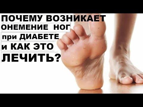 Болят и немеют ноги ступни при диабете