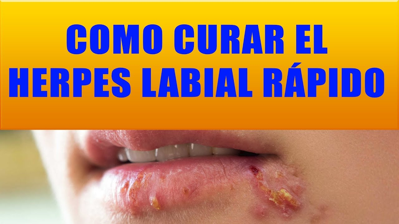 remedios caseros para curar la herpes simple