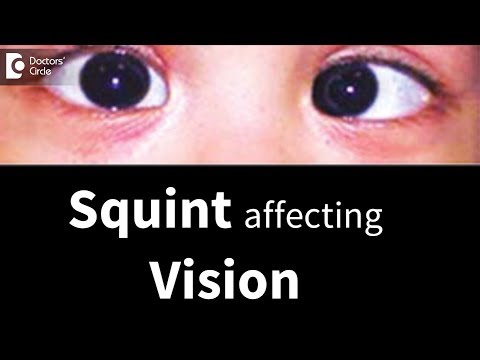 can-squint-affects-vision-later-in-life?---dr.-sunita-rana-agarwal