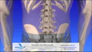 видео Лечение пояснично-крестцового и шейного отдела позвоночника блокадами