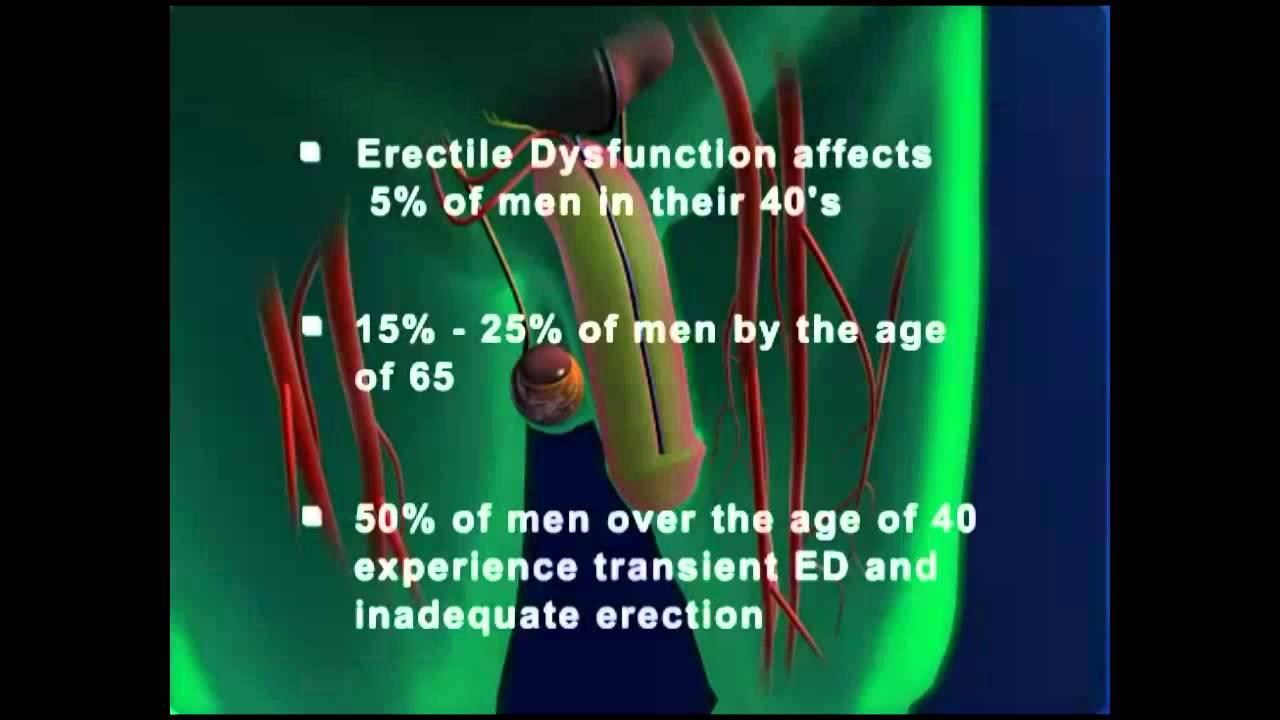 Erectile dysfunction age 50
