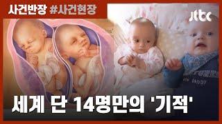임신 중에 또 임신을?…영국서 태어난 '드물게 특별한 쌍둥이' / JTBC 사건반장