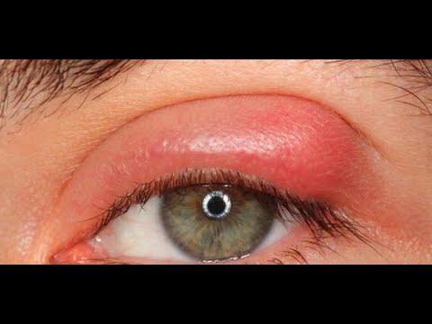 علاج انتفاخ جفن العين العلوي Youtube
