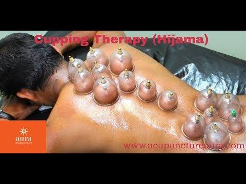 Hijama Ernakulam - Hijama Treatment in Ernakulam-Hijama ...