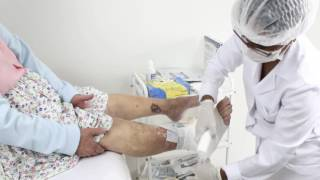 Nas feridas uke pernas úlceras