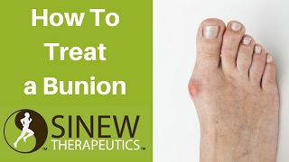 How Treat Bunion And Recovery