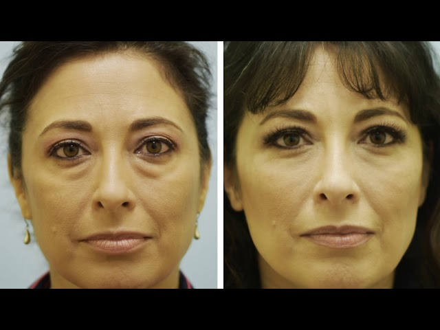 Dallas Lower Blepharoplasty Fat Grafting Testimonial with Dr. Sam Lam