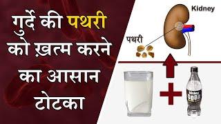 गुर्दे की पथरी का घरेलू इलाज एक बार में ही जड़ से ख़तम || Kidney Stone Treatment Without Surgery Hindi