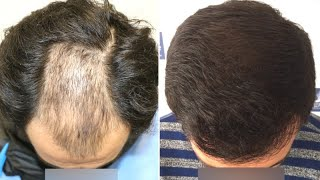Download lagu FUE Hair Transplant (3640 Grafts Norwood V) By Dr Juan Couto - FUEXPERT CLINIC, Madrid, Spain
