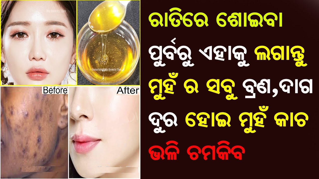 Get Clear Spotless Skin   Look Like 10 Years Old   Remove Black Spots On Face   Priyanka's Tips