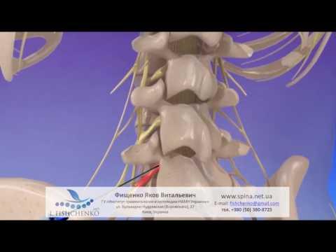 Обострение остеохондроза - шейного, поясничного, грудного