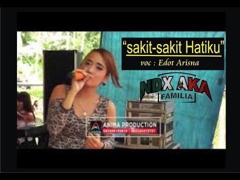 NDX A K A SAKIT SAKIT HATIKU cover EDOT ARISNA terbaru 2017 cewek cantik