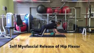 Are Tight Hip Flexors Contributing to Your Low Back Pain? thumbnail