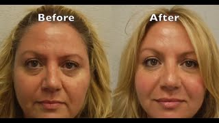 Marionette Line Correction with Radiesse For NJ patient