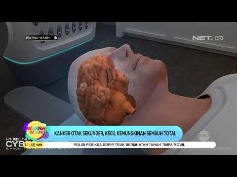 Penyakit Kanker Otak - Gejala, Penyebab, Pengobatan ...