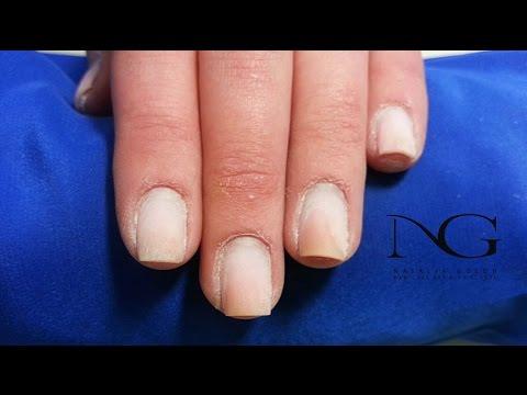 Почему ногти на руках отходят от кожи. Лечение ногтей