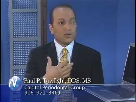 Paul Towfighi, DDS, MS - Dental Implants, with Randy Alvarez