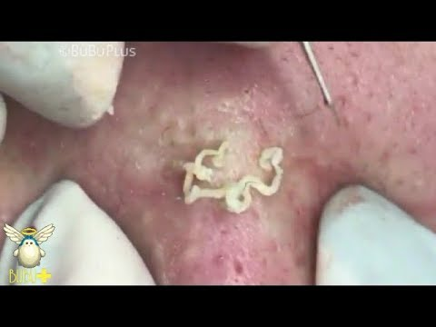 Extraction Of Cystic Acne And Pimples, Blackheads On Face Acne Treatment 90217!