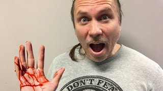 100 SNAKE BITES IN 10 MINUTES! | BRIAN BARCZYK