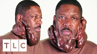 Chronic Keloids Are Seriously Impacting This Man's Life | Body Bizarre