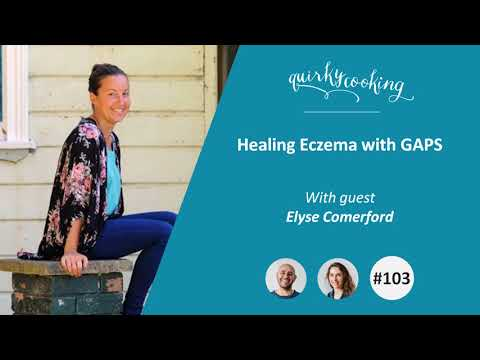 Healing Eczema with GAPS – A Quirky Journey Podcast #103
