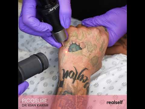 Laser tattoo removal makes ink disappear - YouTube