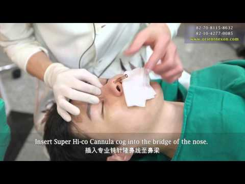 Orientnexon Surgery for Nose