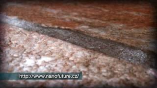 NANOFUTURE ošetření pomocí Kamix 307