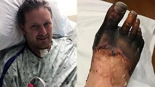 Man With Strep Throat Forced To Amputate Hands And Feet