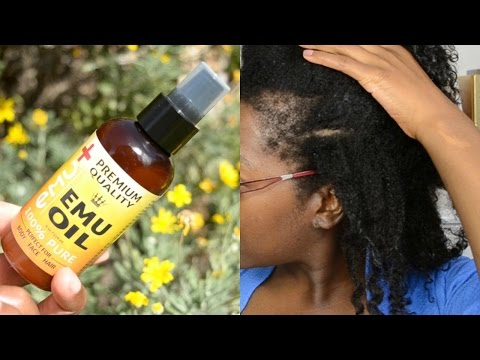 EMU OIL FOR TRACTION ALOPECIA, BALD SPOT AND THIN EDGES: HOW TO GROW BACK YOUR EDGES