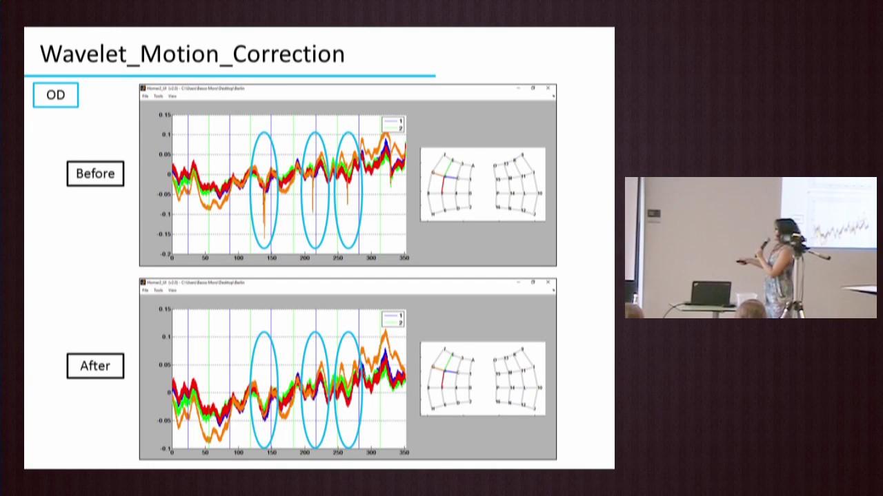 fNIRS Analysis | NIRS Analysis Techniques, Homer2, NIRS Toolbox