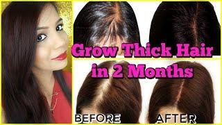 Fast Hair Growth Treatment Grow new Hair in 2 Months | SuperPrincessjo