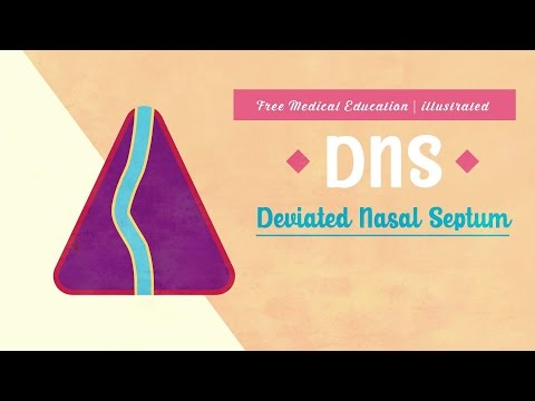 Deviated Nasal Septum (DNS) | ENT | Free Medical Education | illustrated | Subtitled