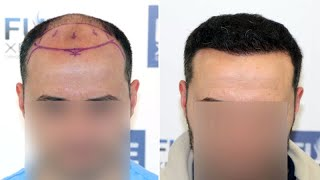 Download lagu FUE Hair Transplant at 6 Months (3601 Grafts NW VI) Dr Juan Couto - FUEXPERT CLINIC, Madrid, Spain