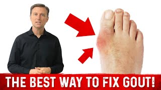 The Best Way to Fix GOUT!