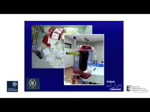 Oxford University Surgical Lectures: Rectal Cancer