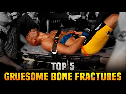 5 Most Gruesome Bone Fractures In The UFC