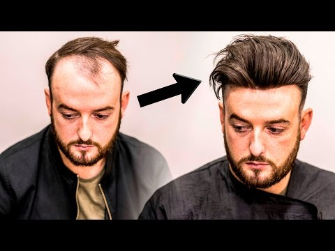 Mens Hair Loss Treatment | Hairstyle Transformation - Does it Work?