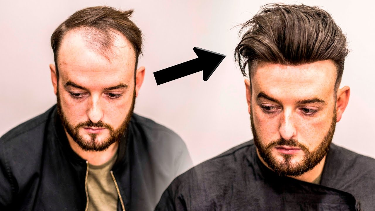 Mens Hair Loss Treatment  Hairstyle Transformation  Does it Work?  YouTube