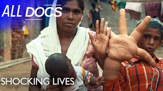 The Boy with the Giant Hands - Kaleem Mohammed | Extraordinary People Documentary | Documental